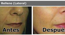Toxina Botulinica y Relleno Facial